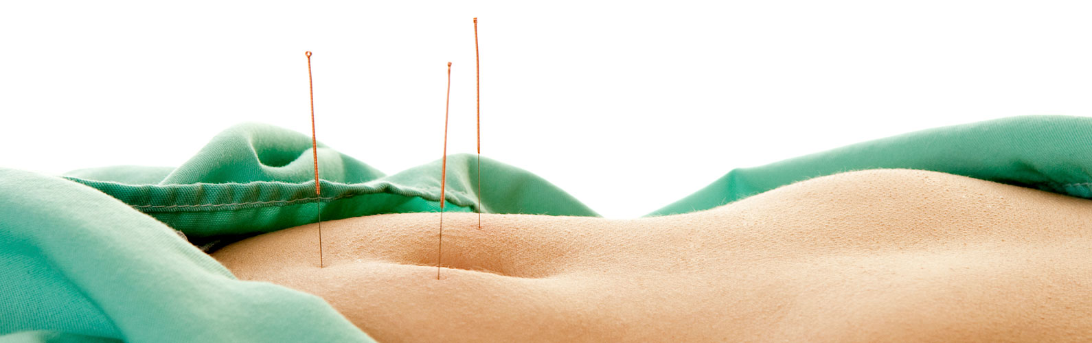 Acupuncture fees