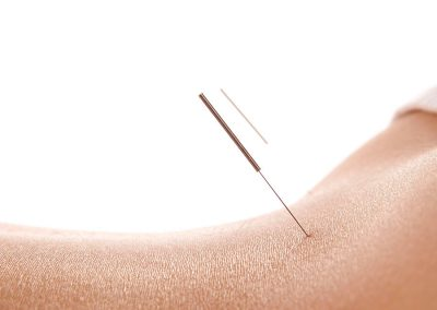 Acupuncture treatment on lower back