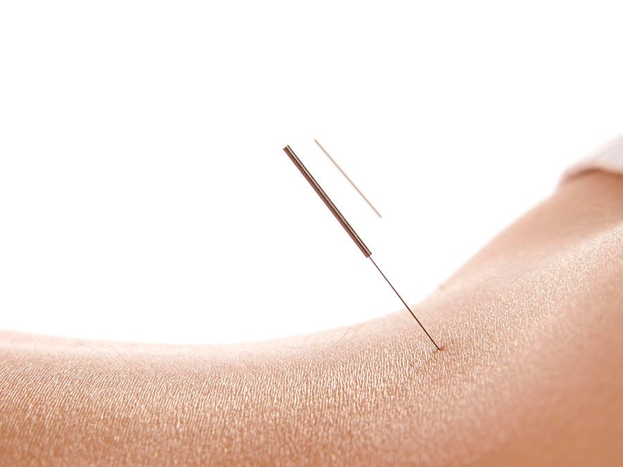 New Acupuncture website